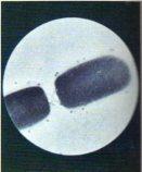 cosa sono i microbi